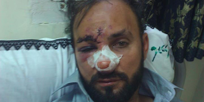 IFJ, SAMSN condemn attack on journalist