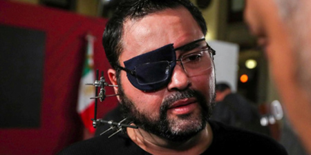 Attacked Mexican journalist asks president for justice