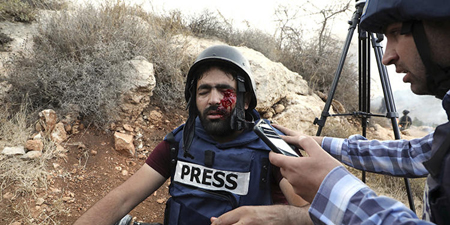 Palestinian photographer injured by Israeli forces